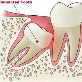 Apa itu gigi terpendam ?
